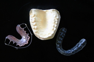 Вижте Dental Implants 37