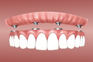 Info about Dental Implants Bulgaria 30