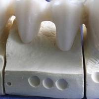 Find Dental Implants Bulgaria 33